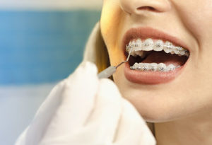 mouth being looked at by orthodontist, dental braces tx